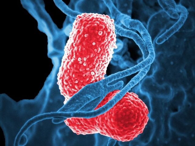 bacteria screened in high resolution via electron microscope
